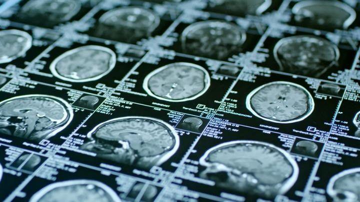 """""""El COVID-19 ha cambiado el panorama del accidente cerebrovascular en todo el mundo"""""""