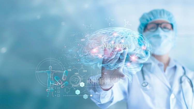 Las demencias, que según la OMS afectan a 50 millones de personas en el mundo. De esos casos, entre el 60% y 70% corresponden a la más conocida de las demencias, la enfermedad de Alzheimer, que afecta en el país a más de 500 mil personas (Shutterstock)
