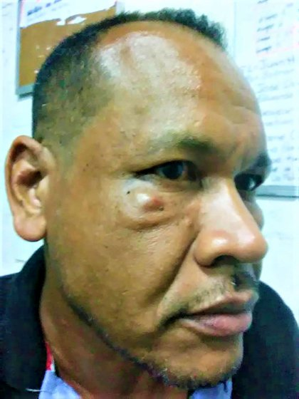 Jesús Vásquez salió golpeado del Centro Negra Hipólita