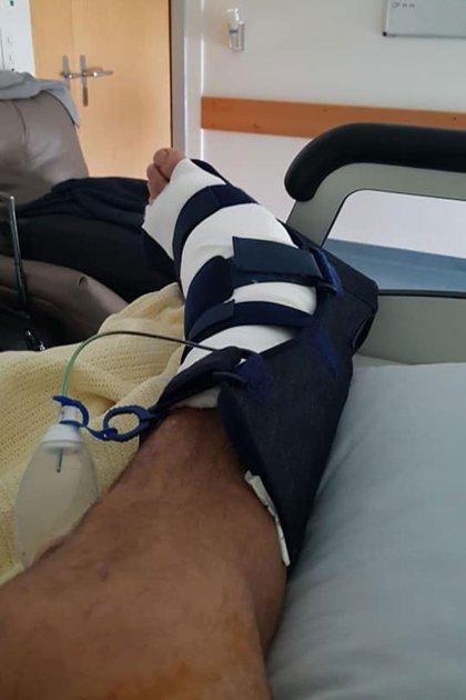 Así quedó el tobillo de Batistuta después de la operación en una clínica en Suiza (@GBatistutaOK)