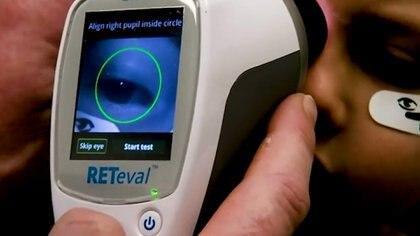 Un método desarrollado en Hong Kong para escanear las retinas de niños de seis años y así detectar el autismo temprano o el riesgo de autismo