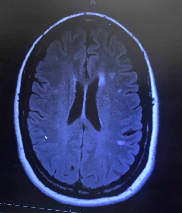El trastorno afecta el lóbulo temporal occipital (Foto: Twitter@BTSMamaFan1)