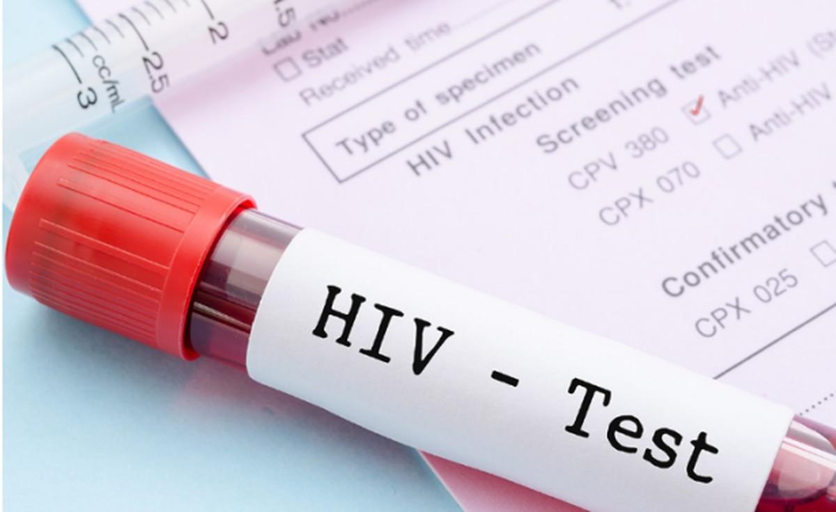 f20dac586 VIH  por segunda vez en la historia se logró curar a una persona - Infobae