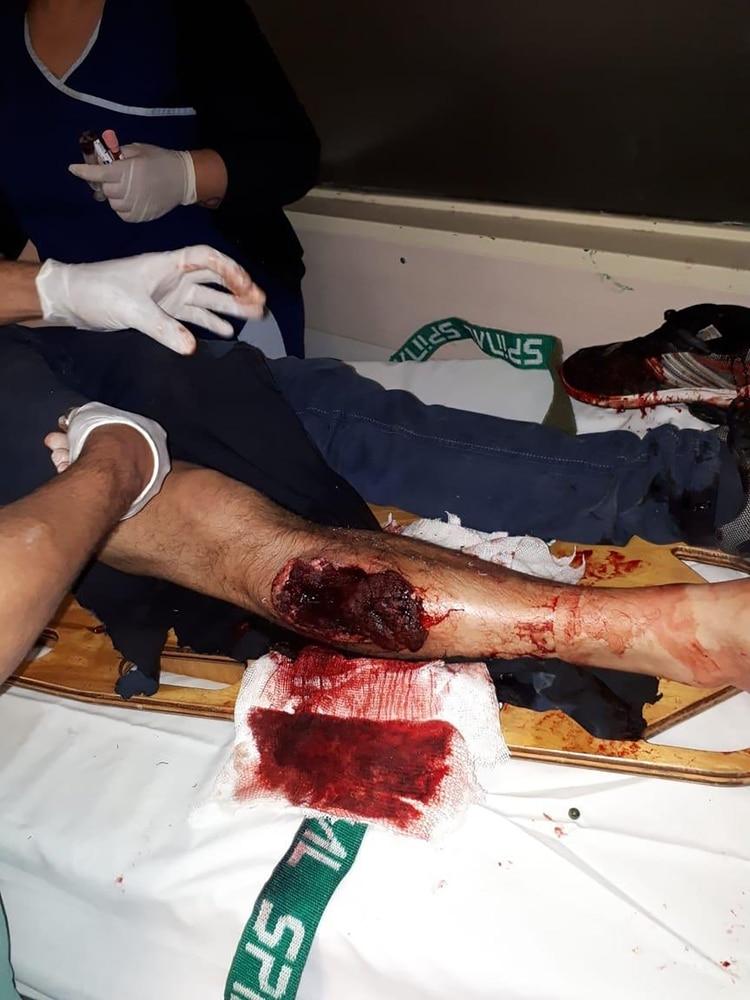 Así quedó la pierna del primo de Maidana (Foto: @GerGarciaGrova)