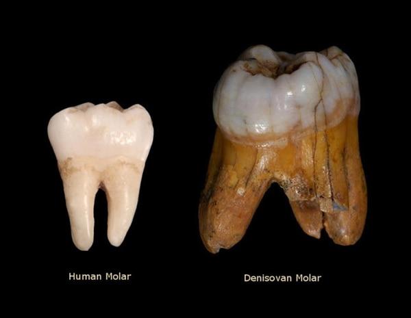 Comparación entre un molar de un homo sapiens sapiens y el denosivano