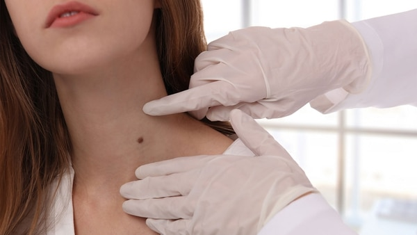 Una consulta al dermatólogo una vez al año es clave para detectar de manera temprana un melanoma (Getty Images)