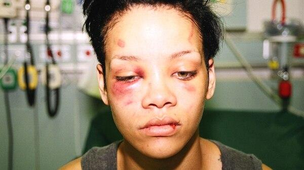 Rihana, brutalmente golpeada por Chris Brown
