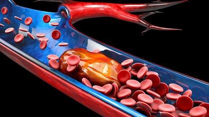 La trombosis es la formación de un coágulo dentro de una arteria (trombosis arterial) o dentro de una vena (trombosis venosa (Shutterstock)