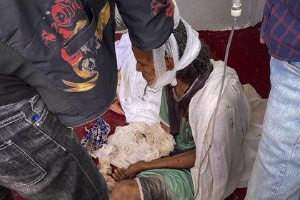 Una anciana que huyó a la ciudad de Axum en la región de Tigray en Etiopía para buscar seguridad está sentada con la cabeza vendada después de ser herida durante un ataque a la ciudad el 30 de noviembre de 2020. Luego murió a causa de las heridas (Foto: AP)