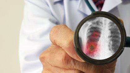 El COVID-19 provoca mucha respuesta inflamatoria y eso es lo que genera en los pulmones un fenómeno que se parecía a una neumonía viral (Shutterstock)