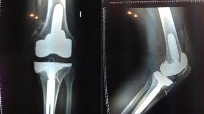 Radiografía de la rodilla de Ricardo Fort