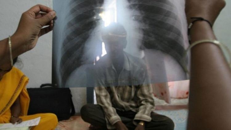 En la Argentina, el Calendario Nacional de Vacunación contempla de manera obligatoria la vacuna BCG, que se aplica a recién nacidos previo a su egreso de la maternidad para proteger de las formas graves de tuberculosis (por ejemplo, meningitis u osteomielitis)