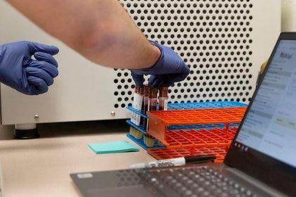 Un investigador de la Universidad de Arizona preparando unas muestras de sangre para un estudio de anticuerpos al coronavirus.  Jul 10, 2020  (REUTERS/Cheney Orr)