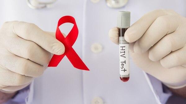 En el país se estima que 120 mil personas viven con VIH, y el 30% lo desconoce(Getty Images)