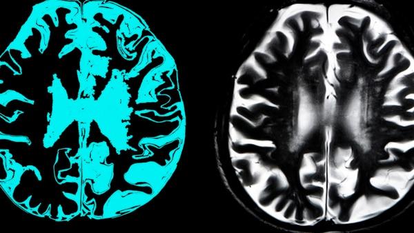 Volkow fue pionera en el uso de neuroimágenes y pruebas de medicina nuclear para investigar los efectos y las propiedades adictivas del abuso de drogas. También ha hecho contribuciones importantes en el campo de la neurobiología sobre la obesidad, el trastorno de déficit de atención con hiperactividad y los cambios conductuales que ocurren al envejecer. (Getty)