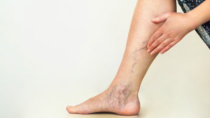Menos recurrente, los coágulos y la trombosis también pueden indicar un cuadro de COVID-19 (Shutterstock)