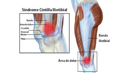 Este síndrome también es llamado de la cintilla iliotibial