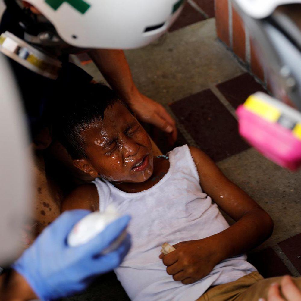 Otra imagen desnuda la represión chavista: la policía militar atacó con gases lacrimógenos a un niño