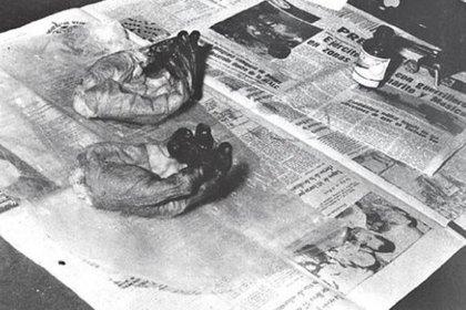 Las manos seccionadas del Che Guevara para facilitar su identificación, donde los dedos llenos de tinta para tomar sus huellas digitales