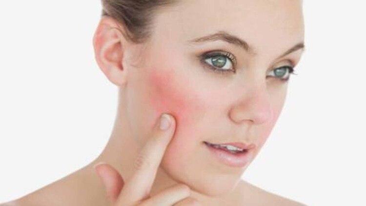 Resultado de imagen para enrojecimiento de la piel