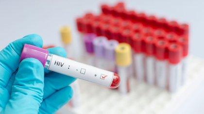 Aproximadamente 36 millones de pacientes con el virus del VIH