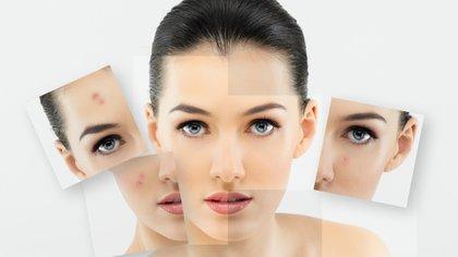 Existen diferentes tipos de láser que permite tratar afecciones como rosácea, venas faciales, cicatrices de acné y manchas (Shutterstock)