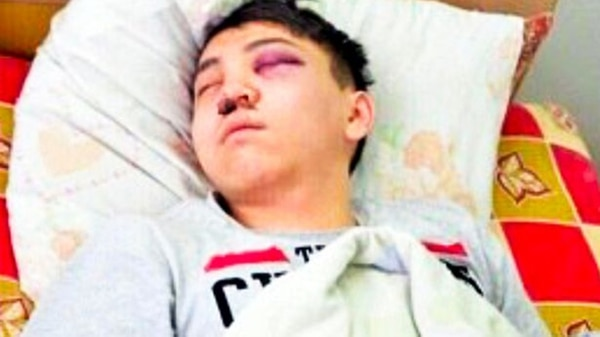 R. Suleimanov, la víctima a quien su novia le cortó los testículos en un ataque de celos