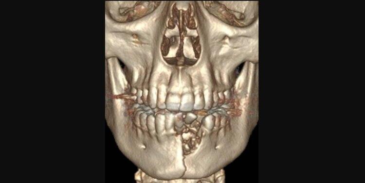 La lesión de Austin le ocasionó fractura de mandíbula y perder varios dientes Foto: New England Medical Journal