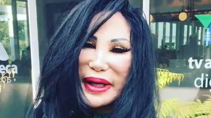Por un mal tratamiento estético el rostro de Lyn May se deformó (IG: lyn_may_)