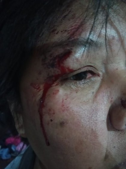 La mujer herida por el golpe de la policía