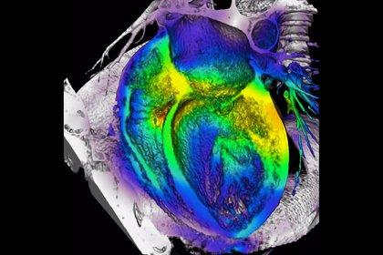 01/06/2011 corazón, diagnóstico cardiaco MADRID SALUD ESPAÑA EUROPA ASOCIACIÓN ESPAÑOLA DE IMAGEN CARDÍACA