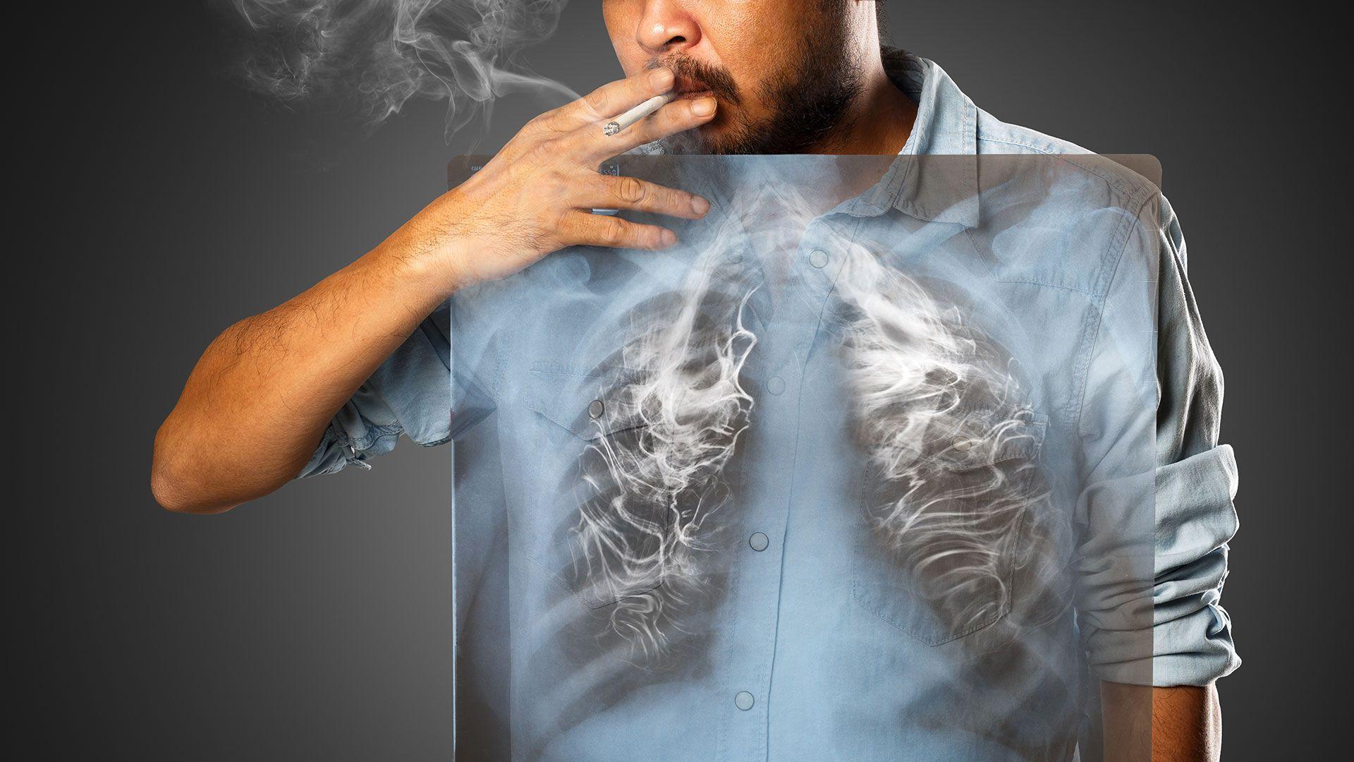 Se trata de una enfermedad principalmente asociada al consumo de tabaco (Shutterstock)