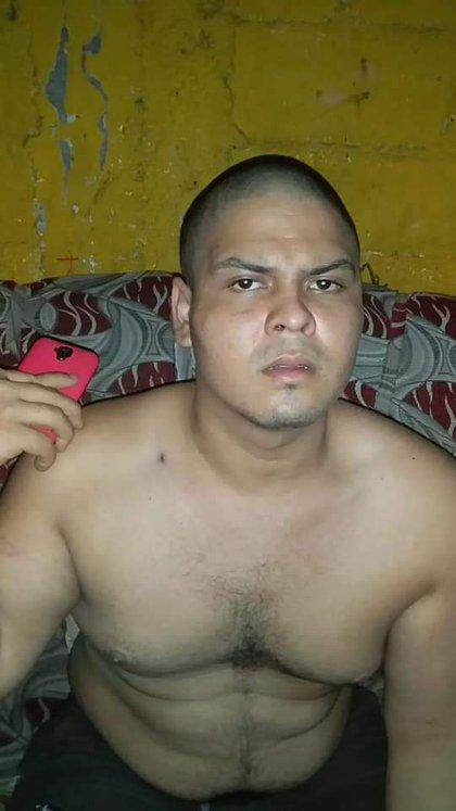 Leonardo Rivas, 23 años, apareció rapado, golpeado y marcado en la espalda, después de seis días que no se sabía de él. (Foto cortesía)