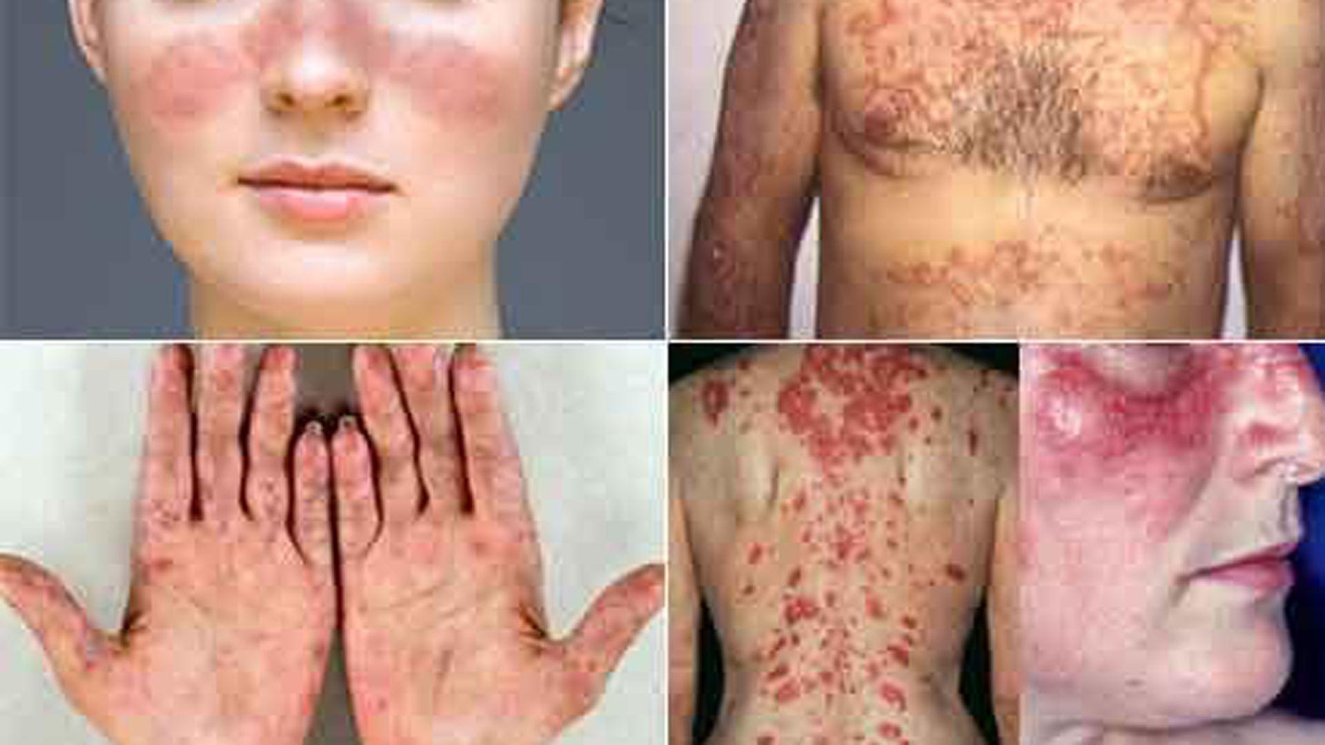 Reacciones del cuerpo ante el lupus