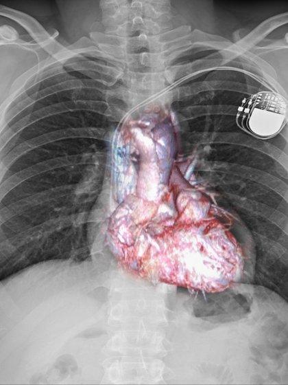 Las cardiopatías congénitas son las malformaciones del corazón y de los grandes vasos (Shutterstock)