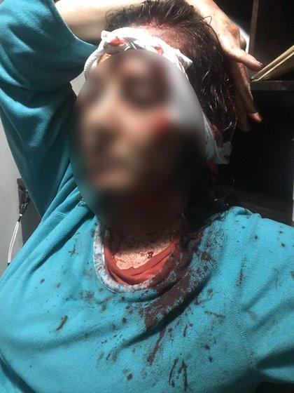 Abril denunció el 6 de enero que dos días antes su esposo había intenta asesinarla a golpes (Foto: Twitter: @anacecygarciap)