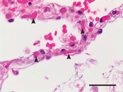 Otra investigación, publicada en NEJM, había observado en los pulmones de pacientes muertos por COVID-19 una gran cantidad de coágulos, que en la imagen señalan las flechas. (NEJM)
