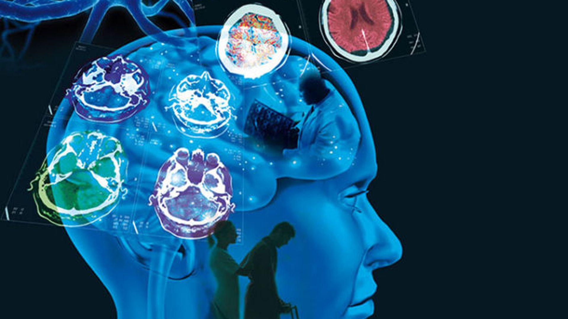La EM es una enfermedad crónica e inflamatoria del sistema nervioso central