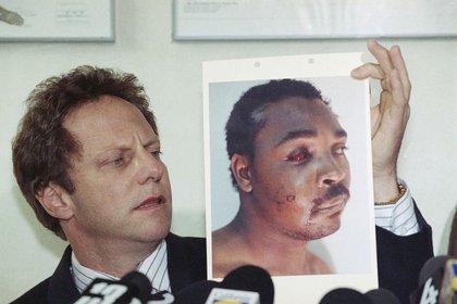 Rodney King tras la golpiza