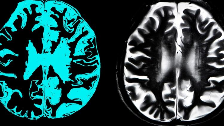 Una muestra de la manifestación del Alzheimer en el cerebro humano. (Getty)