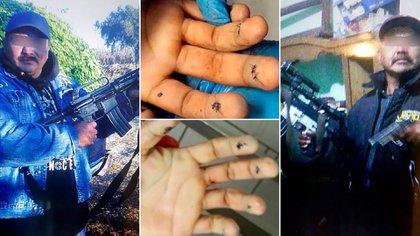 El Kalimba fue ejecutado a finales de 2017 cuando le iban a practicar una cirugía para cambiarle las huellas dactilares y el rostro y por lo tanto conseguir una nueva identidad (Foto: Archivo)