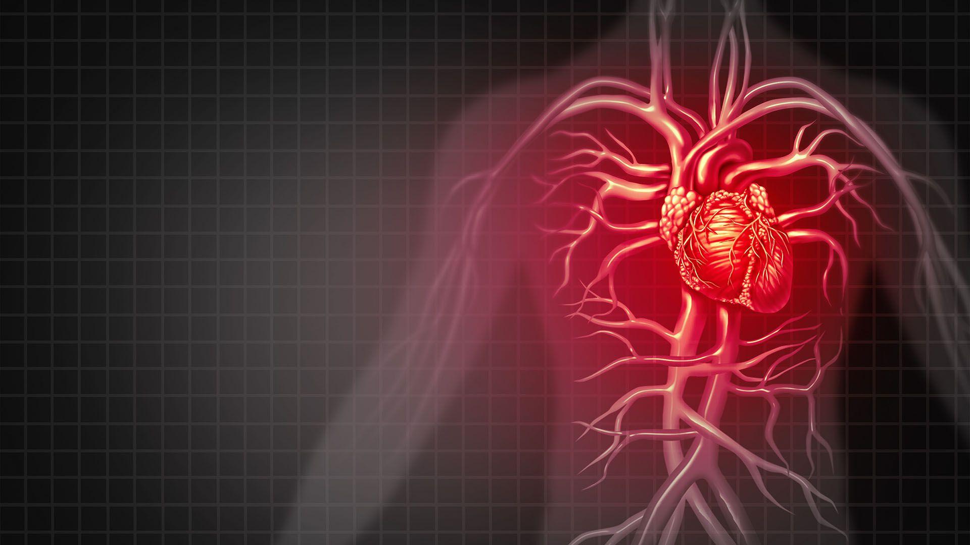 La miocarditis es una inflamación del músculo cardíaco que puede ser causada por una infección viral, pero también aparece como reacción a un medicamento (Getty Images)
