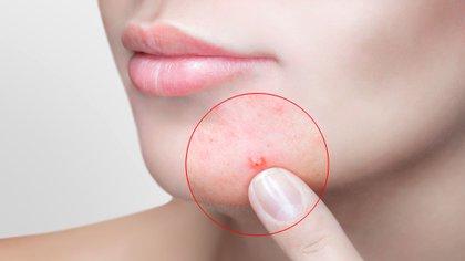 Es muy importante la visita al dermatólogo para elegir el tratamiento adecuado para cada caso (Shutterstock)