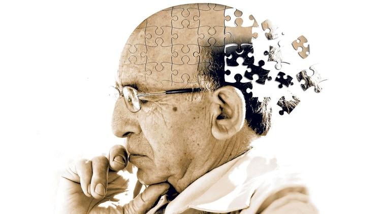 Se desconocen las causas del Alzheimer.Una nueva hipótesis analiza lainjerencia de una bacteria.