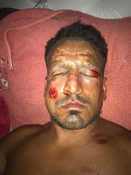Lucas Viatri minutos después de sufrir el accidente con pirotecnia (Gentileza @Roberto_Moar)