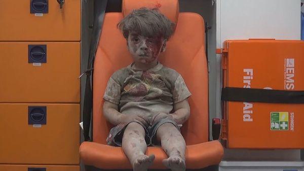El lamentable presente de Omran, niño símbolo de la guerra en Siria