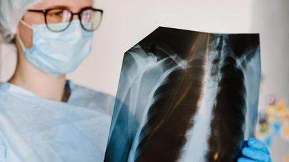 En los casos de cáncer hematológico (leucemias y linfomas) prácticamente la mitad de los diagnósticos ocurrieron en fases más avanzadas (Shutterstock)