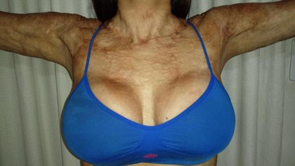 """Operarse las mamas fue la forma que encontró de alisar la piel del busto, que """"parecía cartón corrugado""""."""
