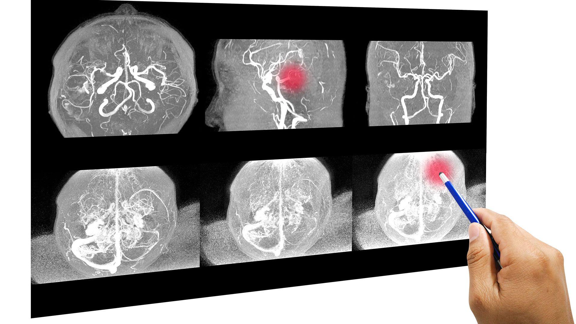El hematoma intracraneal requiere de una operación de urgencia para evitar que la sangre presione al cerebro (Shutterstock)