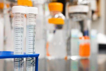 Las castración química consiste en un tratamiento farmacológico que reduce la libido de los sujetos, entre otros efectos. (Foto: Pxhere)